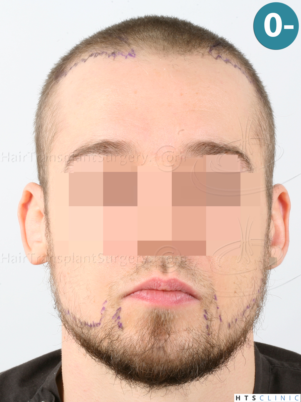 Dr.Devroye-HTS-Clinic-6132-_2011_1232_2889_-FUE-Barbe-et-cheveux-9.jpg