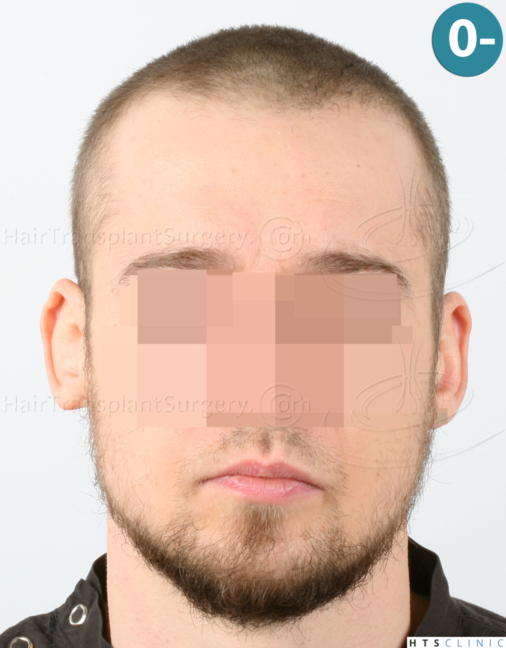 Dr.Devroye-HTS-Clinic-6132-_2011_1232_2889_-FUE-Barbe-et-cheveux-1.jpg