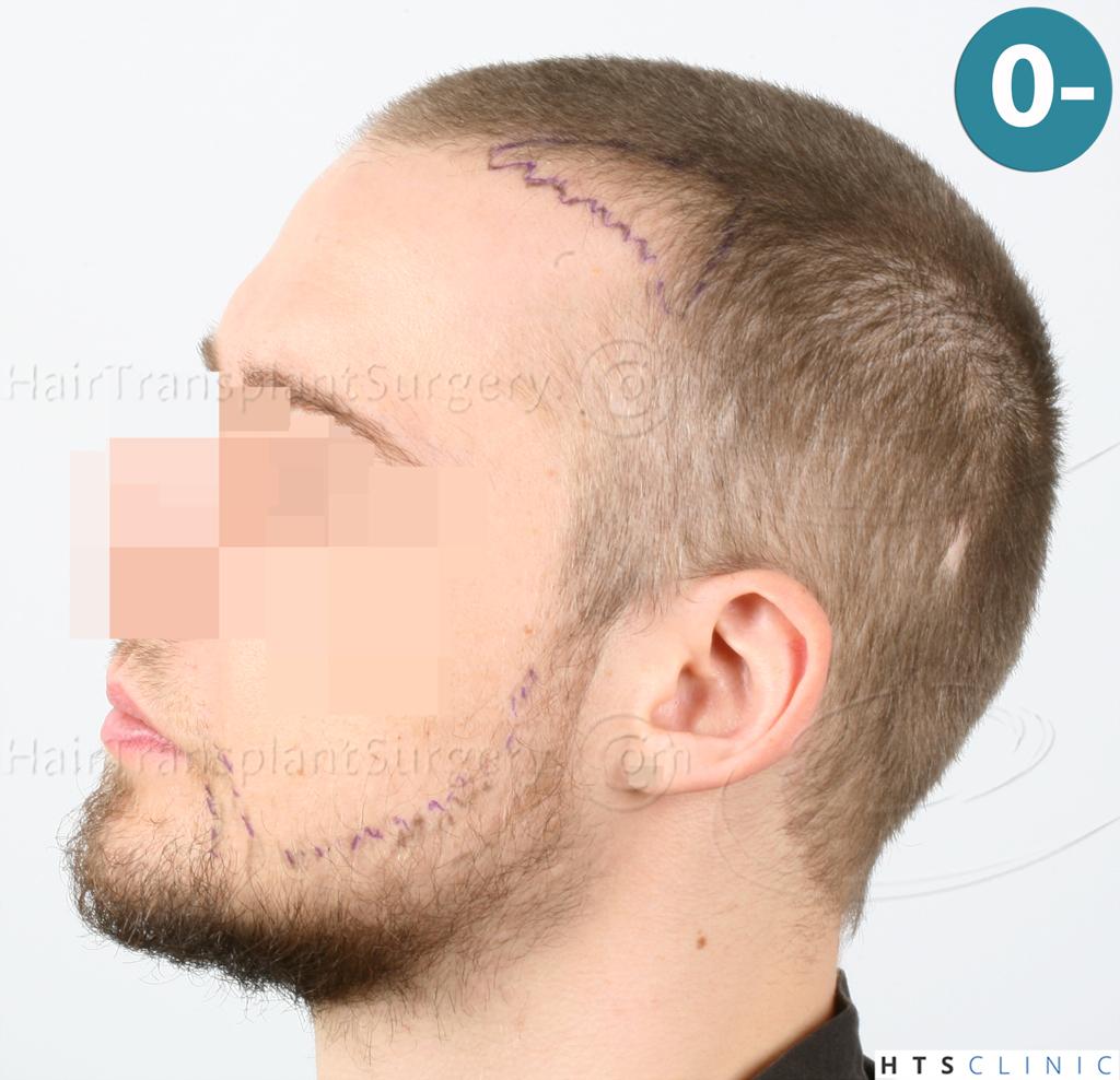Dr.Devroye-HTS-Clinic-6132-_2011_1232_2889_-FUE-Barbe-et-cheveux-10.jpg