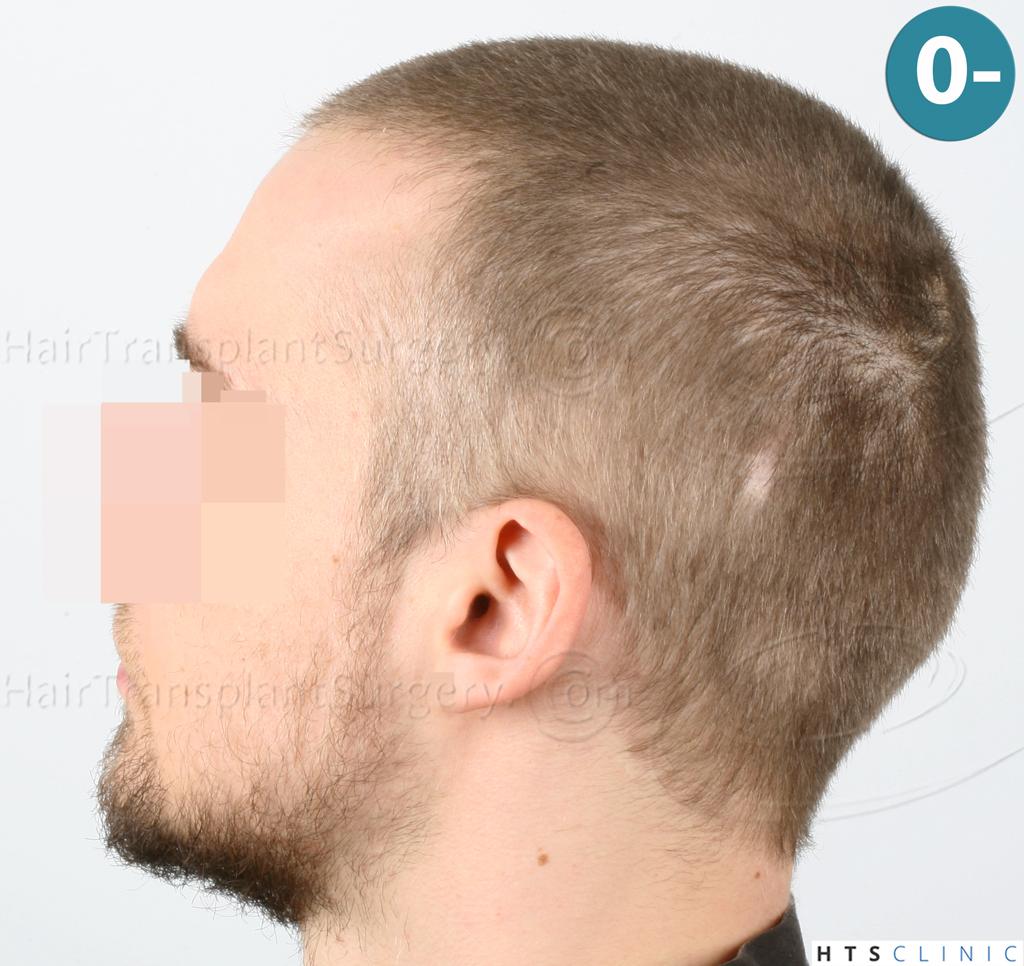 Dr.Devroye-HTS-Clinic-6132-_2011_1232_2889_-FUE-Barbe-et-cheveux-3.jpg
