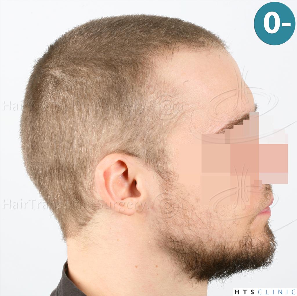 Dr.Devroye-HTS-Clinic-6132-_2011_1232_2889_-FUE-Barbe-et-cheveux-5.jpg