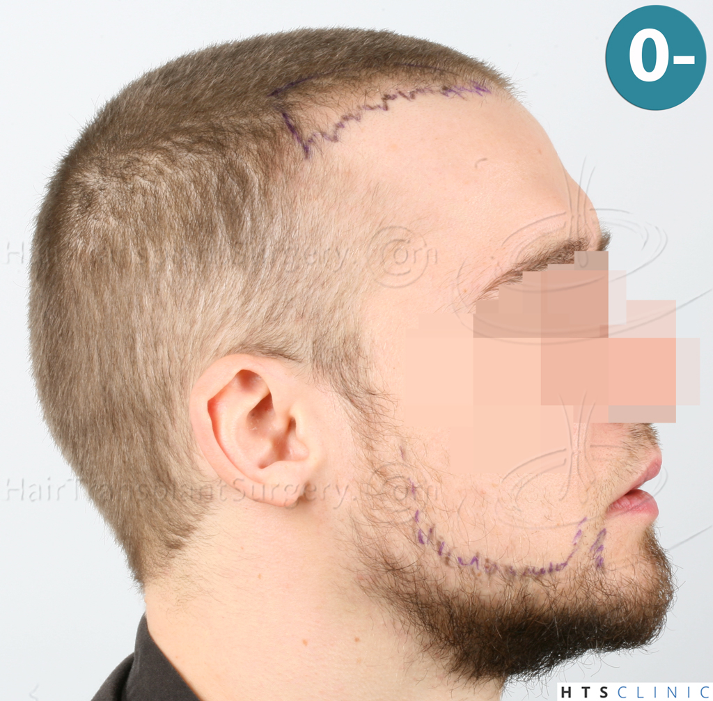 Dr.Devroye-HTS-Clinic-6132-_2011_1232_2889_-FUE-Barbe-et-cheveux-11.jpg
