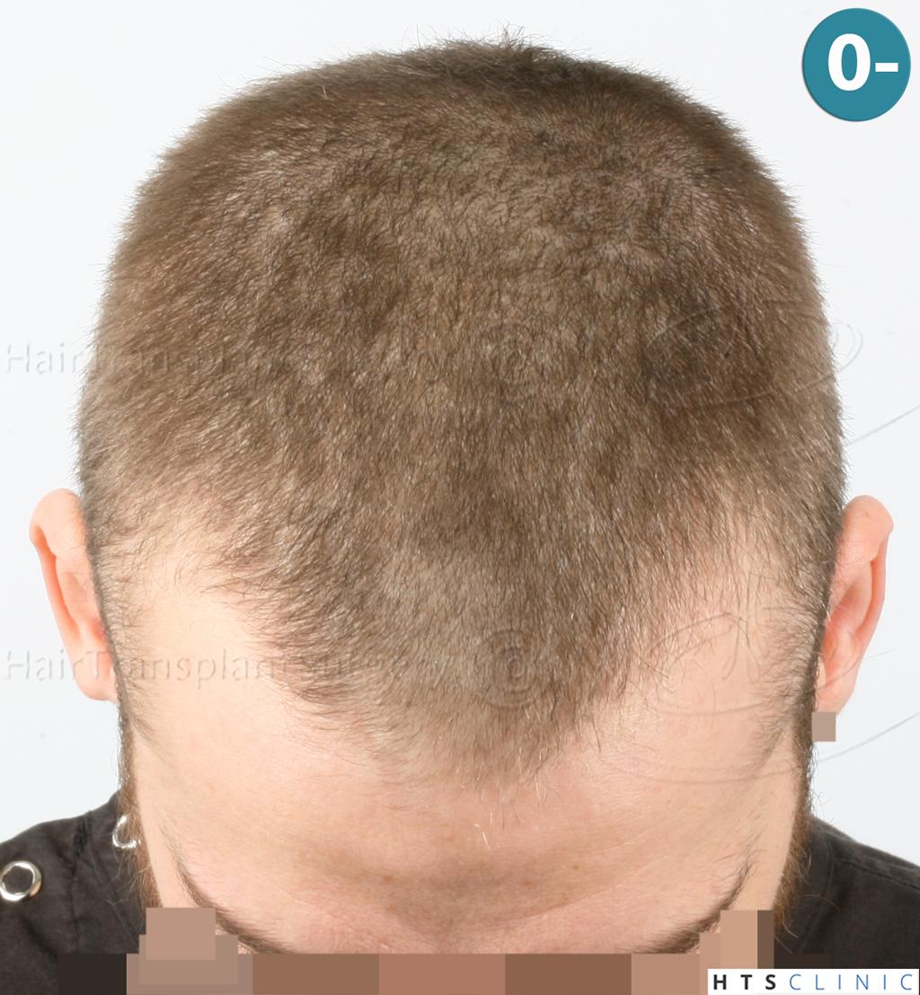 Dr.Devroye-HTS-Clinic-6132-_2011_1232_2889_-FUE-Barbe-et-cheveux-2.jpg