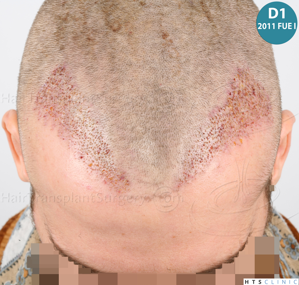 Dr.Devroye-HTS-Clinic-6132-_2011_1232_2889_-FUE-Barbe-et-cheveux-13.jpg