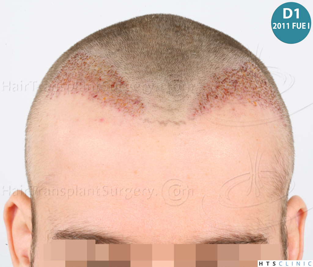 Dr.Devroye-HTS-Clinic-6132-_2011_1232_2889_-FUE-Barbe-et-cheveux-12.jpg