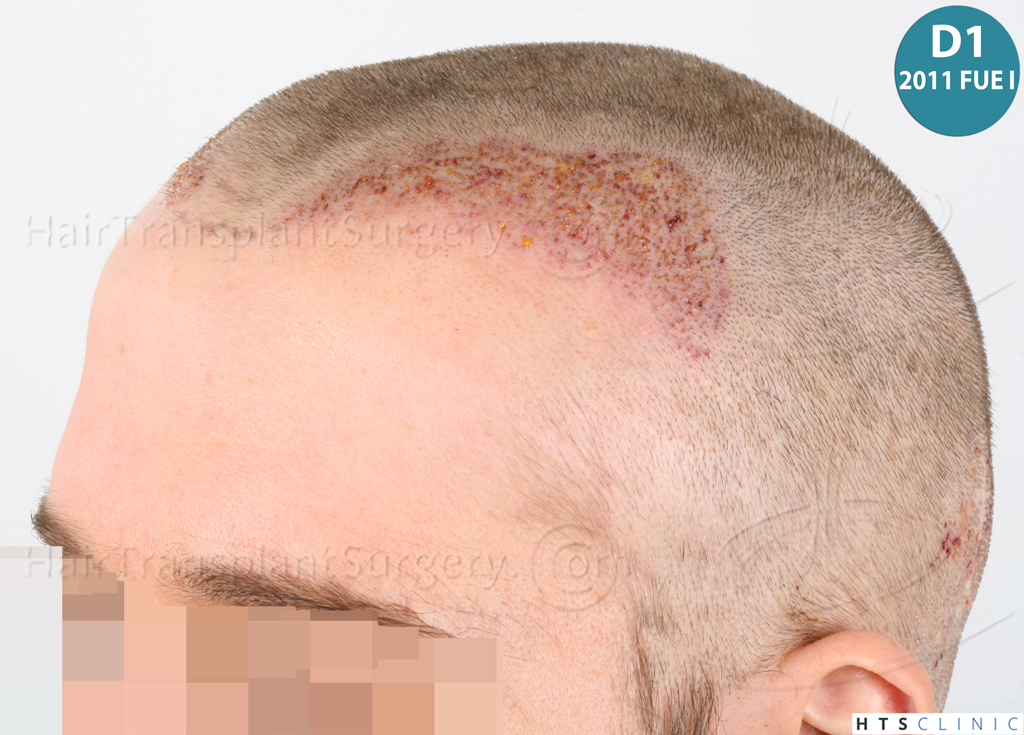 Dr.Devroye-HTS-Clinic-6132-_2011_1232_2889_-FUE-Barbe-et-cheveux-14.jpg