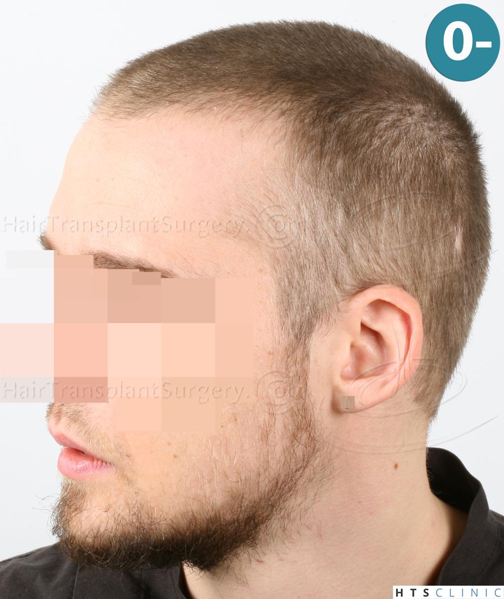 Dr.Devroye-HTS-Clinic-6132-_2011_1232_2889_-FUE-Barbe-et-cheveux-4.jpg