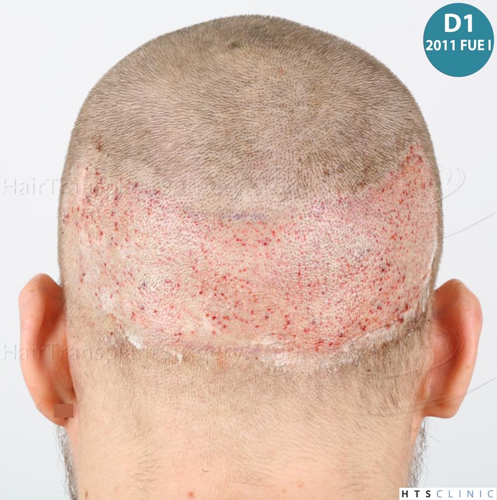 Dr.Devroye-HTS-Clinic-6132-_2011_1232_2889_-FUE-Barbe-et-cheveux-18.jpg