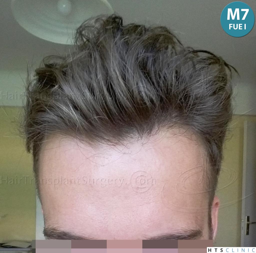 Dr.Devroye-HTS-Clinic-6132-_2011_1232_2889_-FUE-Barbe-et-cheveux-20.jpg