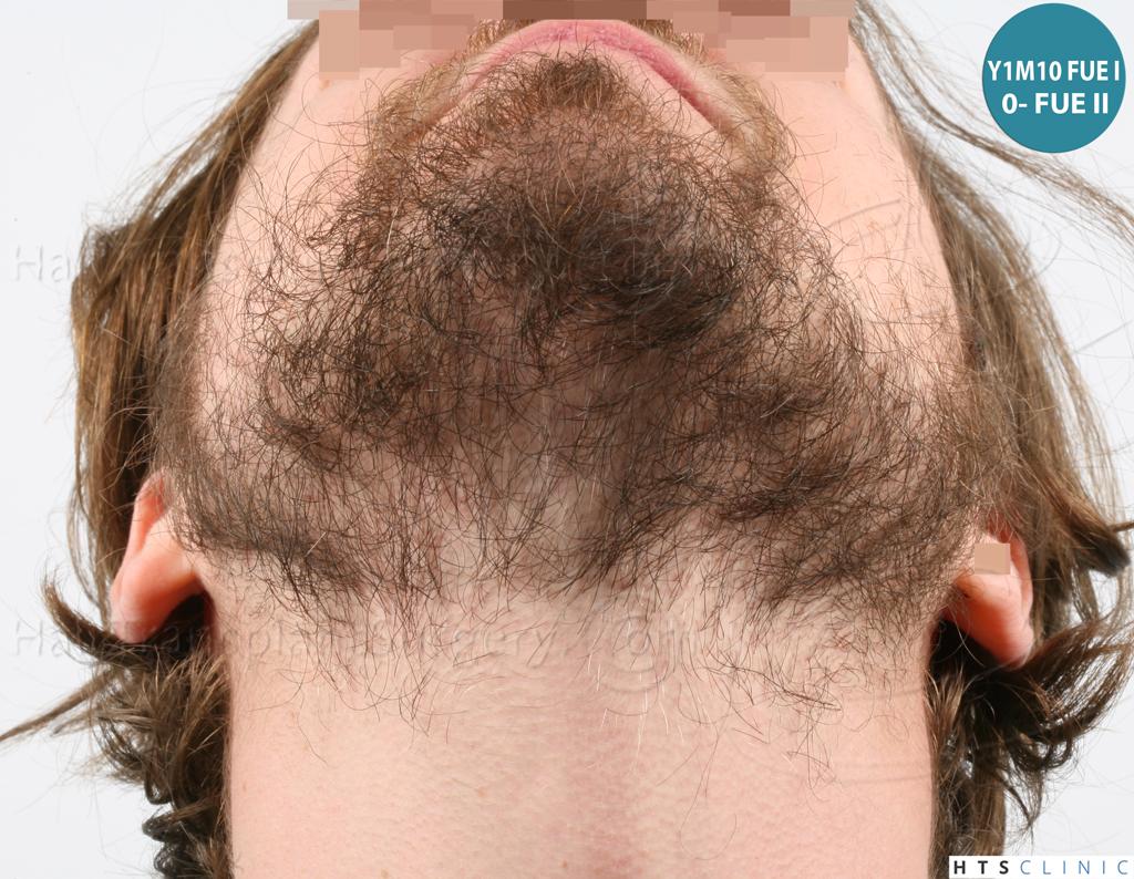 Dr.Devroye-HTS-Clinic-6132-_2011_1232_2889_-FUE-Barbe-et-cheveux-24.jpg