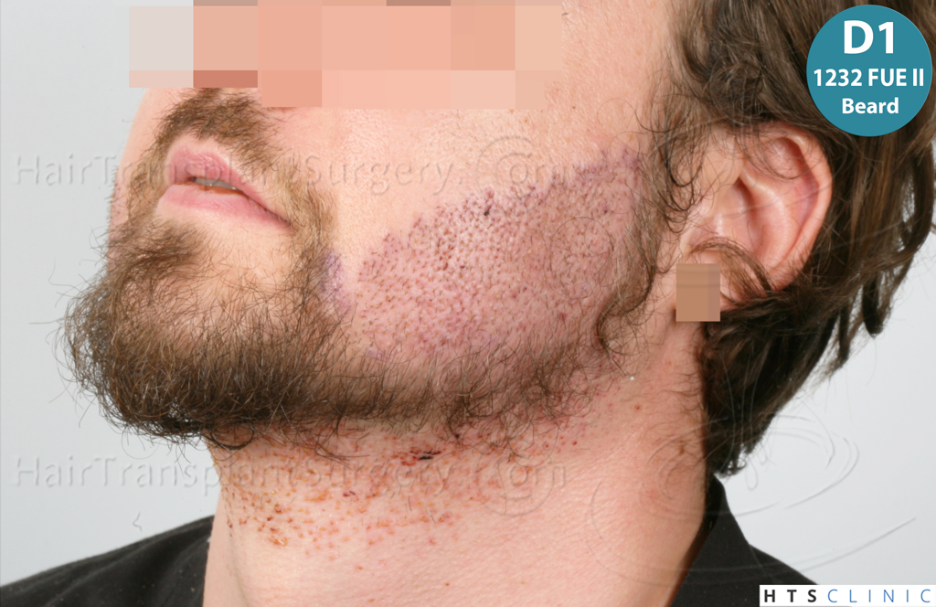Dr.Devroye-HTS-Clinic-6132-_2011_1232_2889_-FUE-Barbe-et-cheveux-26.jpg