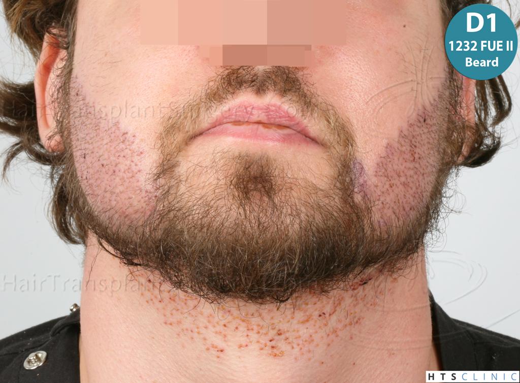 Dr.Devroye-HTS-Clinic-6132-_2011_1232_2889_-FUE-Barbe-et-cheveux-25.jpg