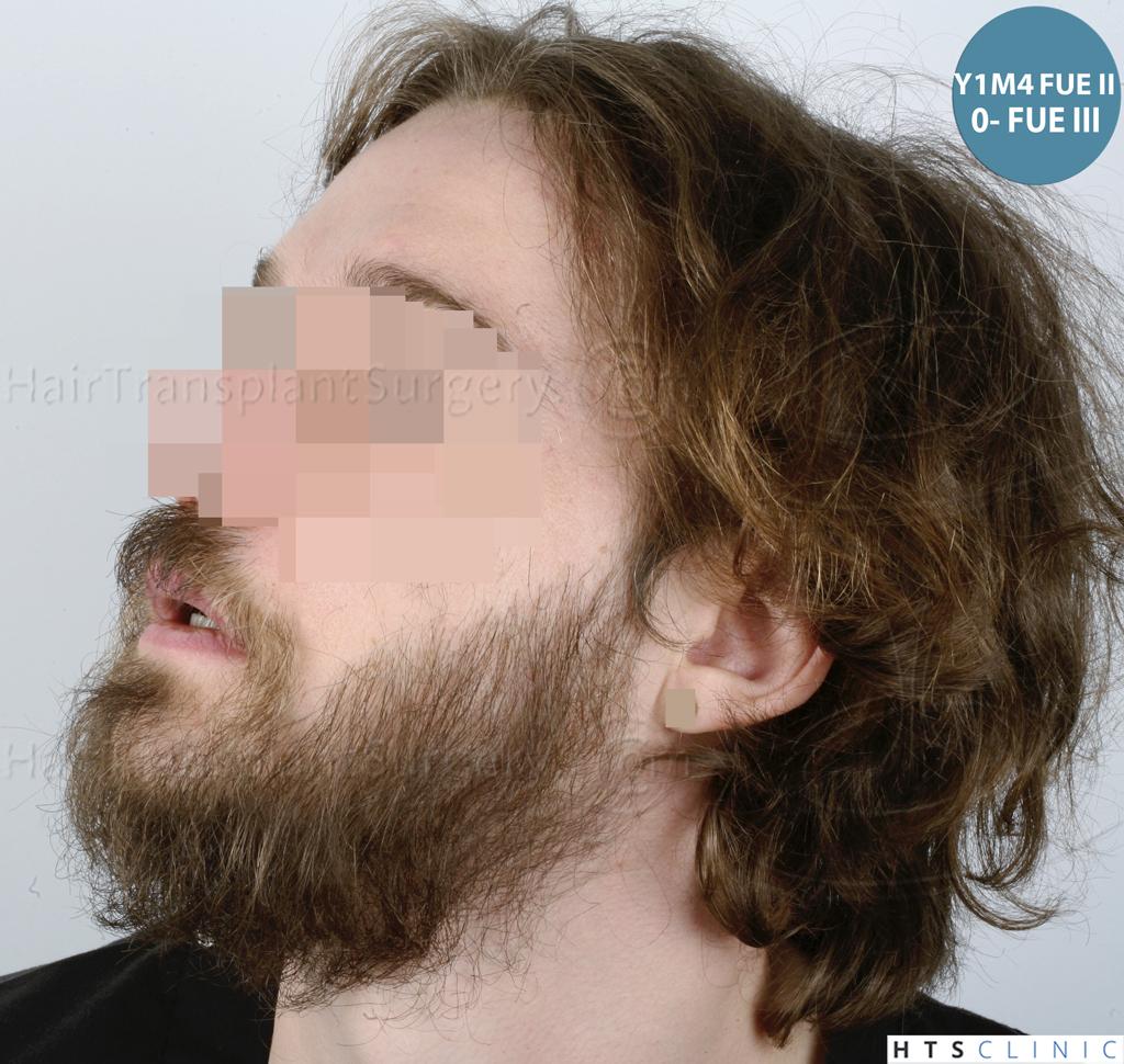 Dr.Devroye-HTS-Clinic-6132-_2011_1232_2889_-FUE-Barbe-et-cheveux-30.jpg