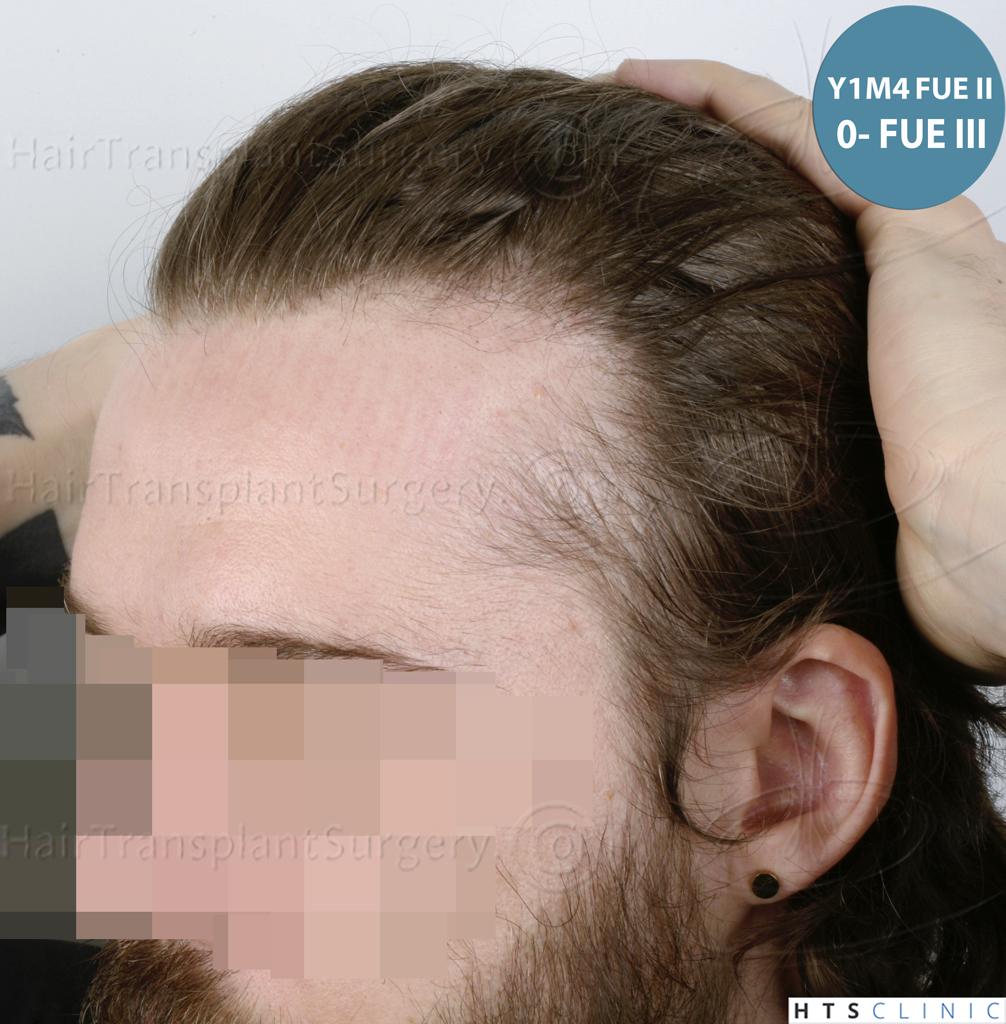 Dr.Devroye-HTS-Clinic-6132-_2011_1232_2889_-FUE-Barbe-et-cheveux-31.jpg