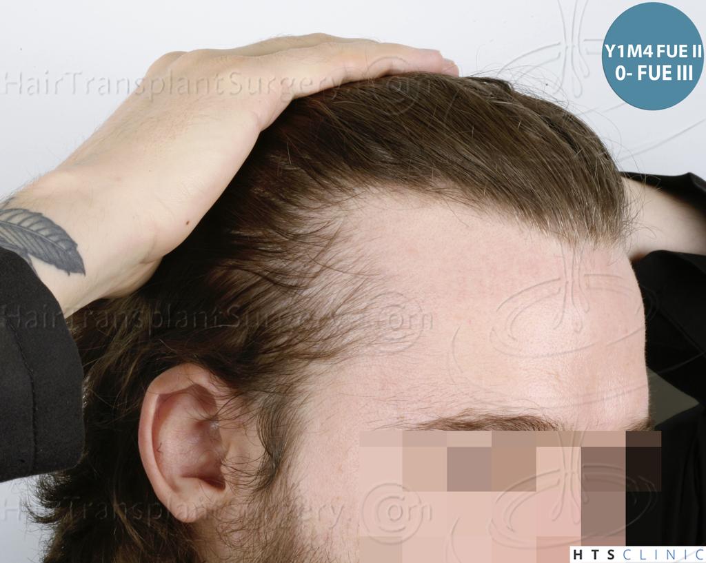 Dr.Devroye-HTS-Clinic-6132-_2011_1232_2889_-FUE-Barbe-et-cheveux-32.jpg