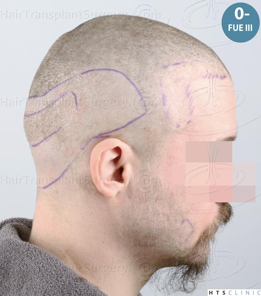 Dr.Devroye-HTS-Clinic-6132-_2011_1232_2889_-FUE-Barbe-et-cheveux-33.jpg