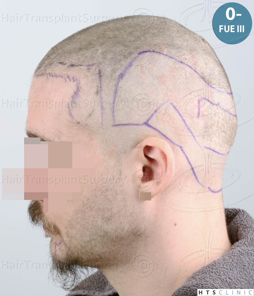Dr.Devroye-HTS-Clinic-6132-_2011_1232_2889_-FUE-Barbe-et-cheveux-34.jpg