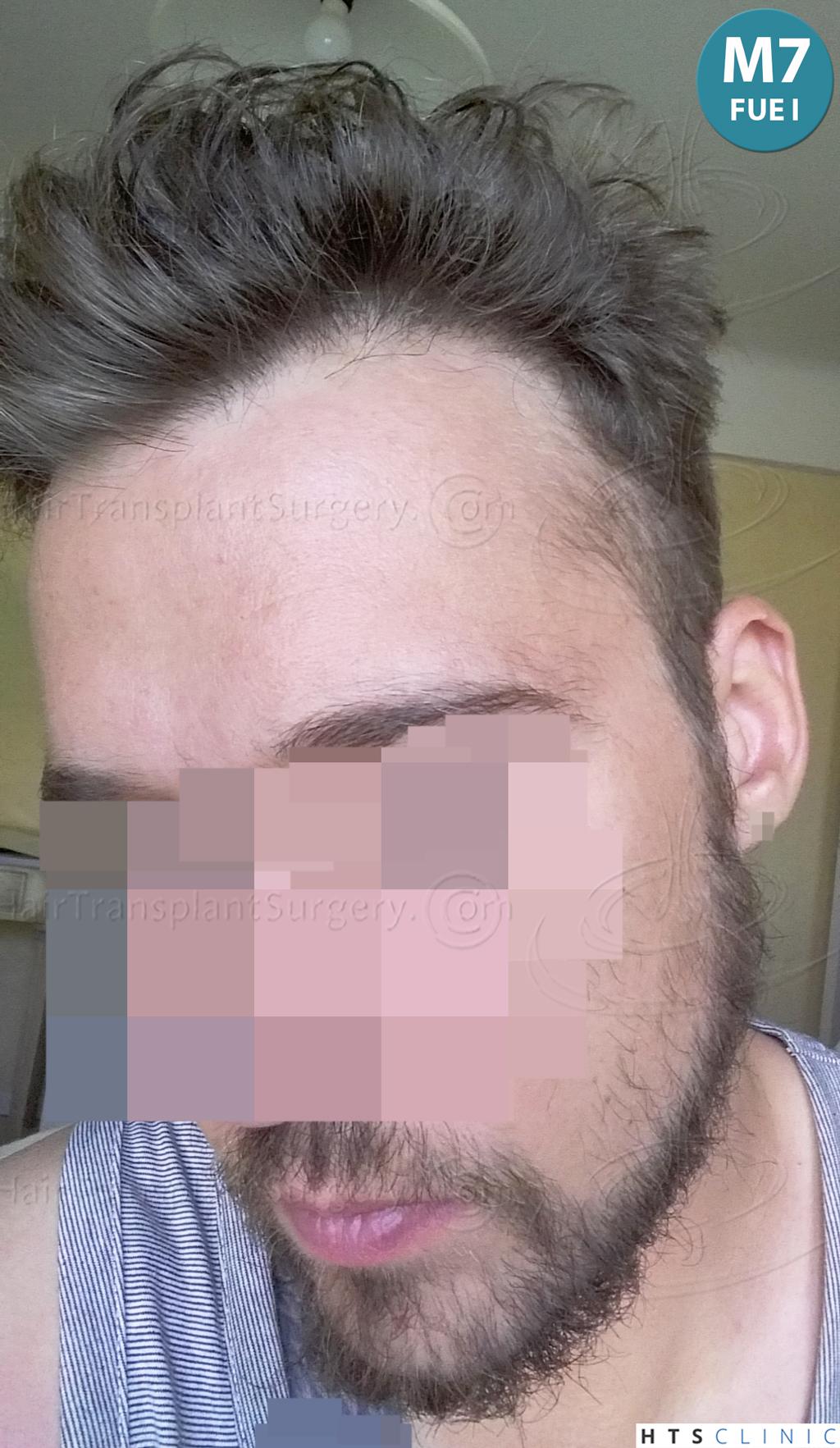 Dr.Devroye-HTS-Clinic-6132-_2011_1232_2889_-FUE-Barbe-et-cheveux-21.jpg