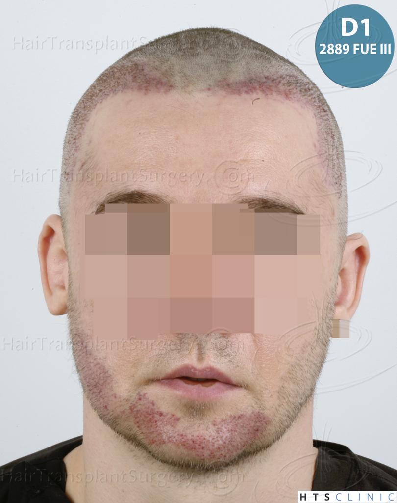 Dr.Devroye-HTS-Clinic-6132-_2011_1232_2889_-FUE-Barbe-et-cheveux-35.jpg