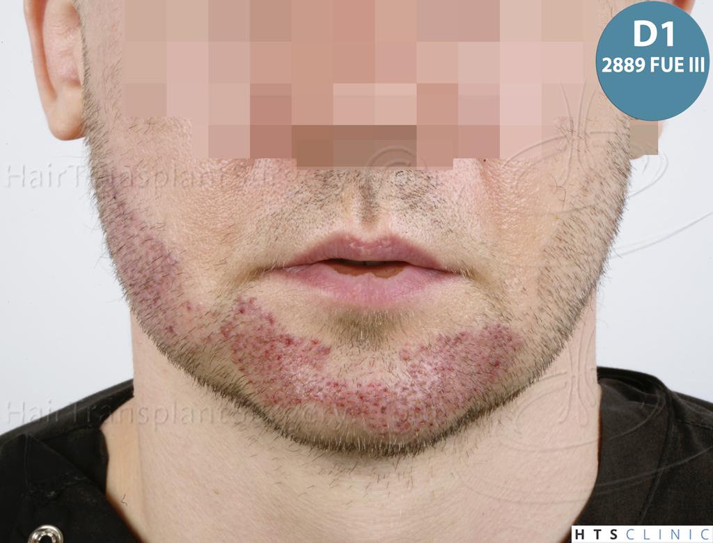 Dr.Devroye-HTS-Clinic-6132-_2011_1232_2889_-FUE-Barbe-et-cheveux-36.jpg