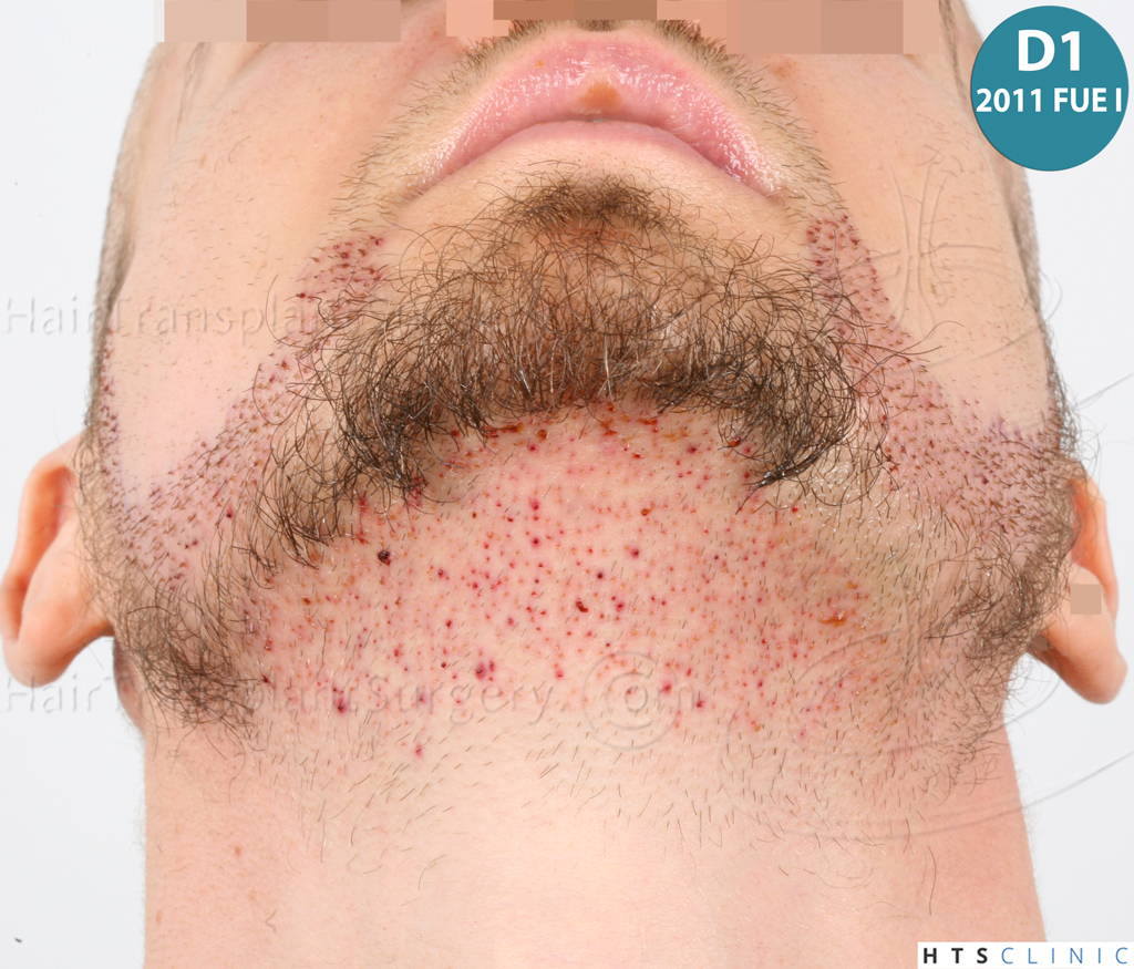 Dr.Devroye-HTS-Clinic-6132-_2011_1232_2889_-FUE-Barbe-et-cheveux-19.jpg
