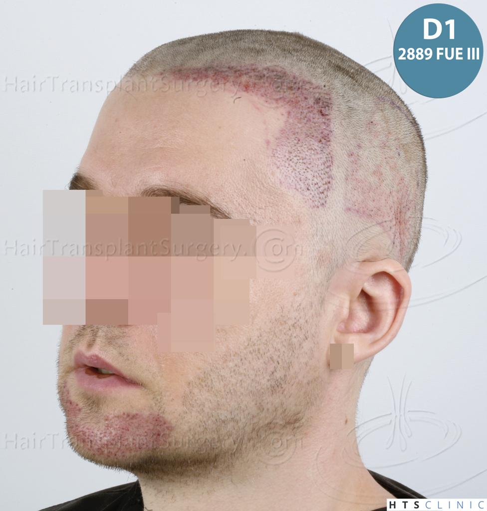 Dr.Devroye-HTS-Clinic-6132-_2011_1232_2889_-FUE-Barbe-et-cheveux-38.jpg