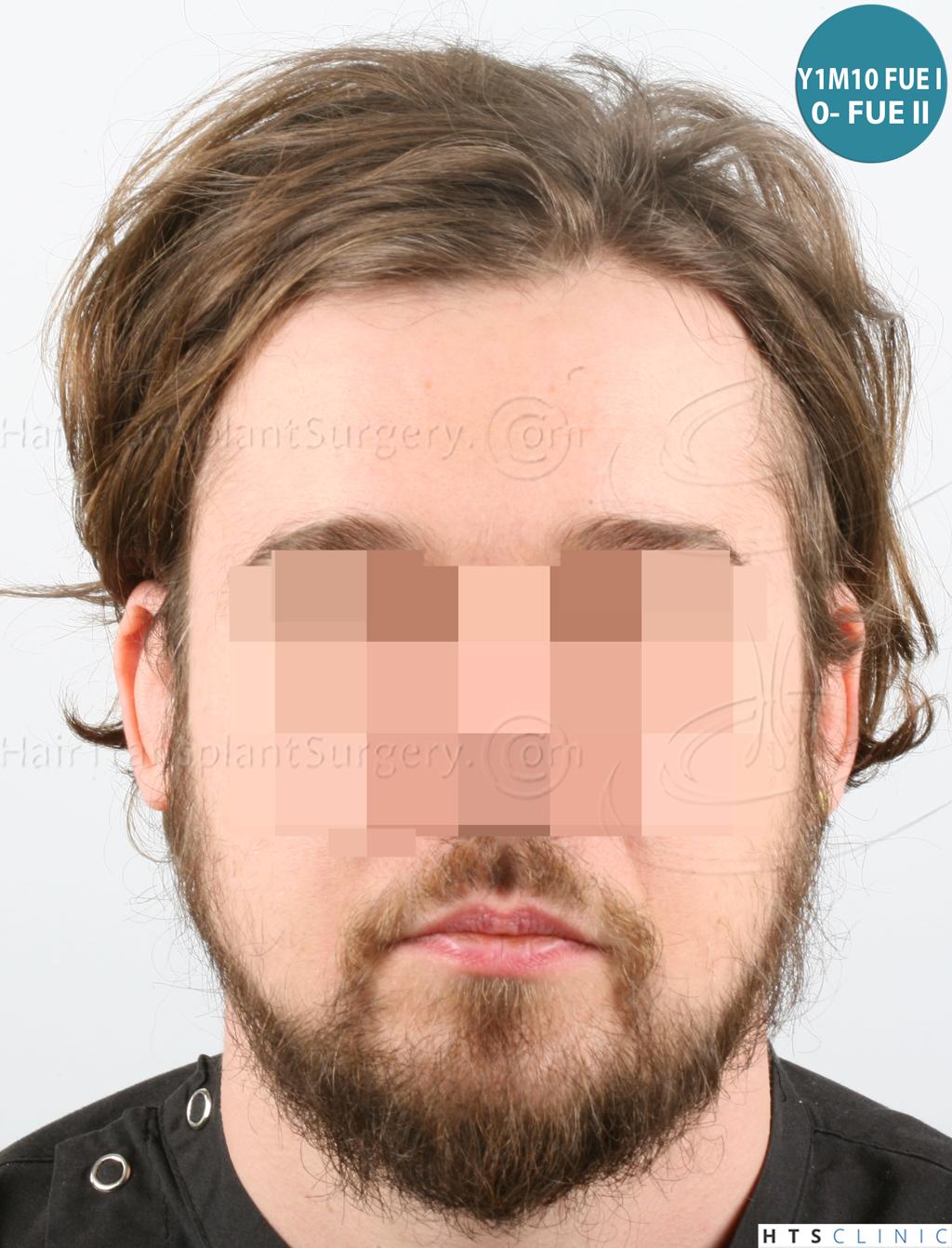 Dr.Devroye-HTS-Clinic-6132-_2011_1232_2889_-FUE-Barbe-et-cheveux-23.jpg