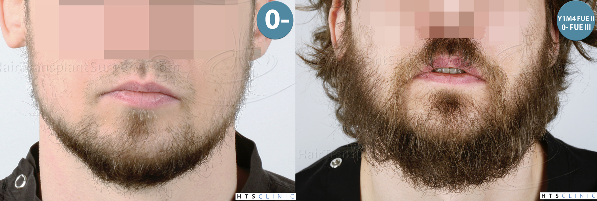Dr.Devroye-HTS-Clinic-6132-_2011_1232_2889_-FUE-Barbe-et-cheveux-Montage1.jpg