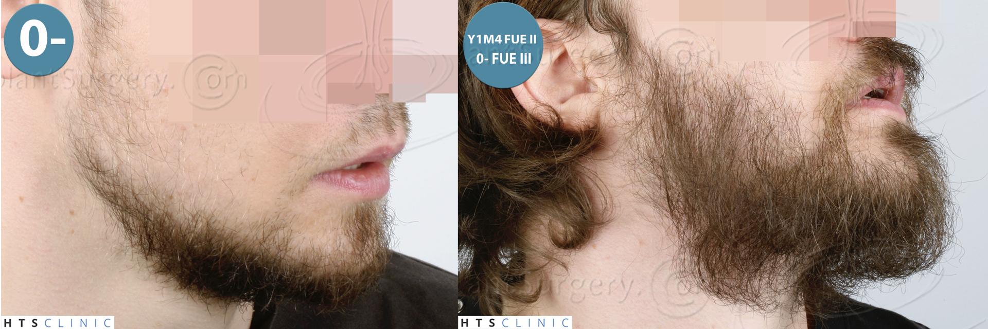 Dr.Devroye-HTS-Clinic-6132-_2011_1232_2889_-FUE-Barbe-et-cheveux-Montage3.jpg