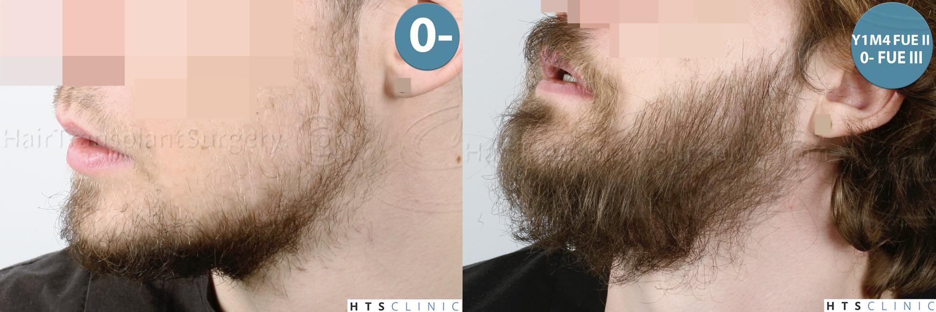 Dr.Devroye-HTS-Clinic-6132-_2011_1232_2889_-FUE-Barbe-et-cheveux-Montage2.jpg