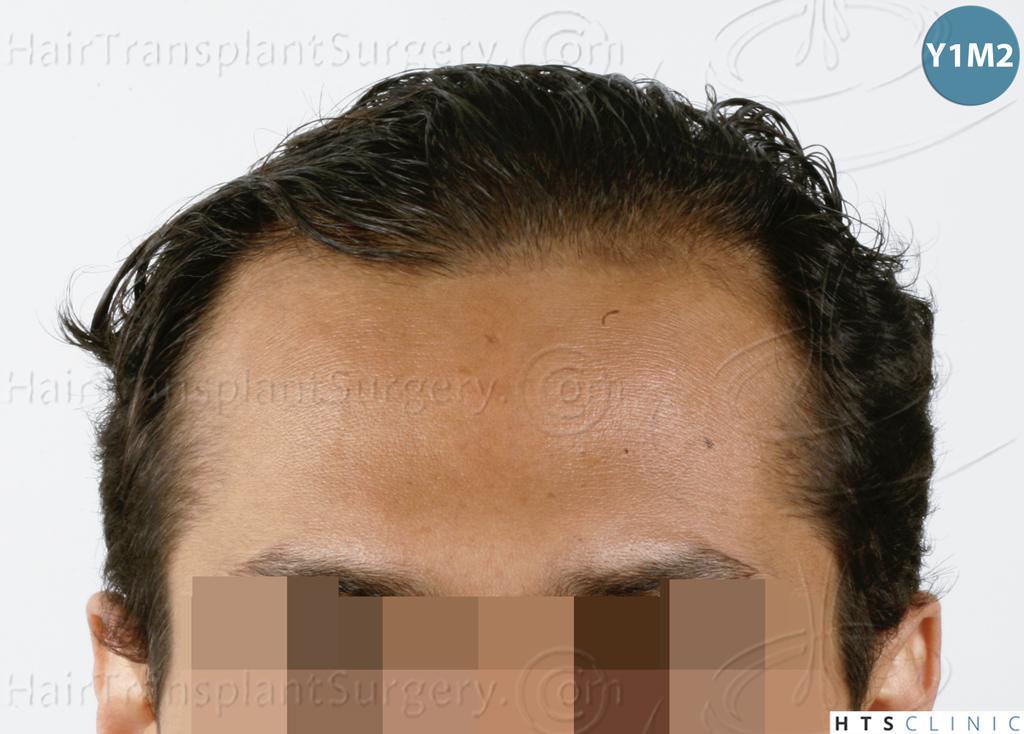 Dr.Devroye-HTS-Clinic-3757-FUT_2138-FUE-7.jpg