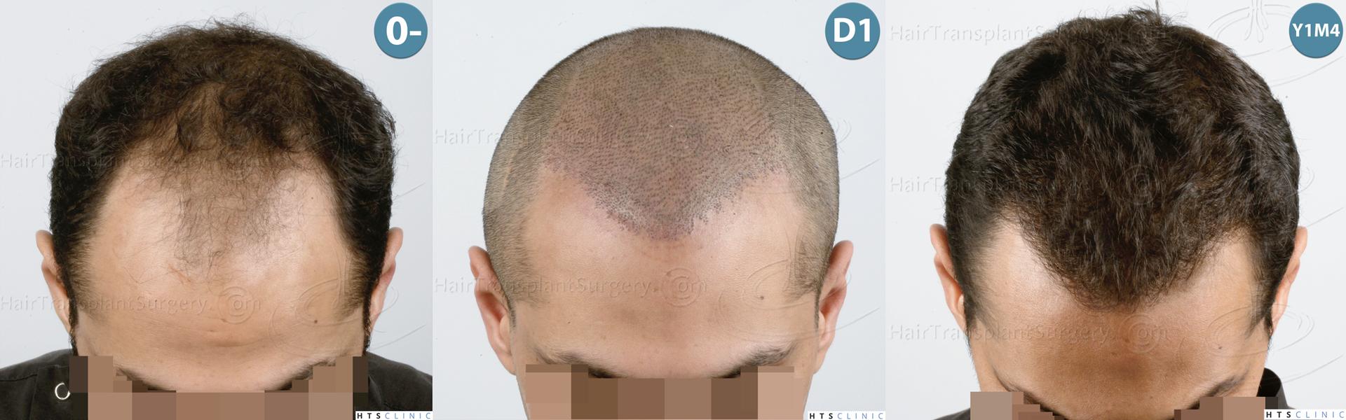 Dr.Devroye-HTS-Clinic-3757-FUT_2138-FUE-Montage2.jpg