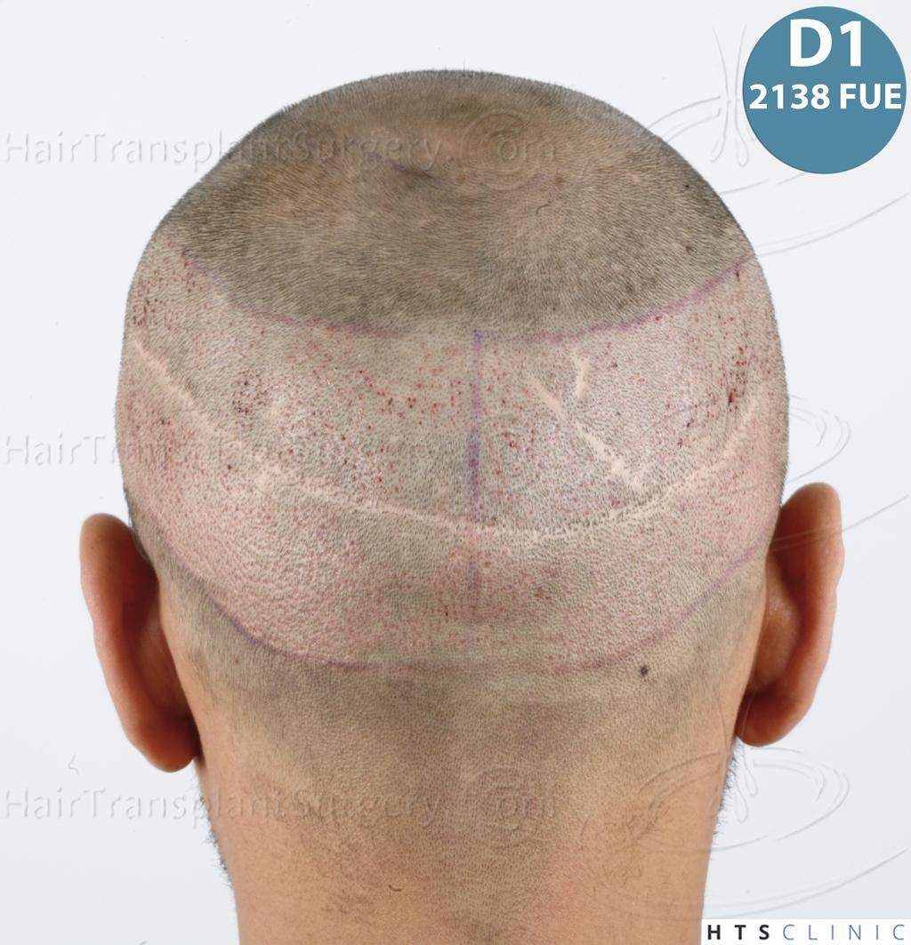 Dr.Devroye-HTS-Clinic-3757-FUT_2138-FUE-25.jpg