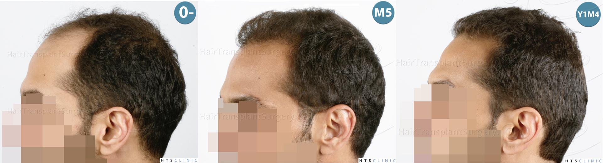 Dr.Devroye-HTS-Clinic-3757-FUT_2138-FUE-Montage3.jpg
