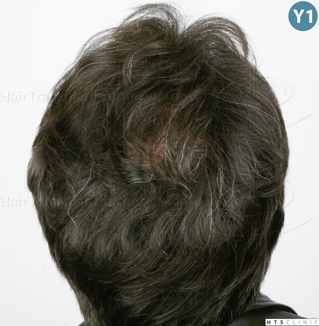 Dr.Devroye-HTS-Clinic-2515-FUT-Vertex-11