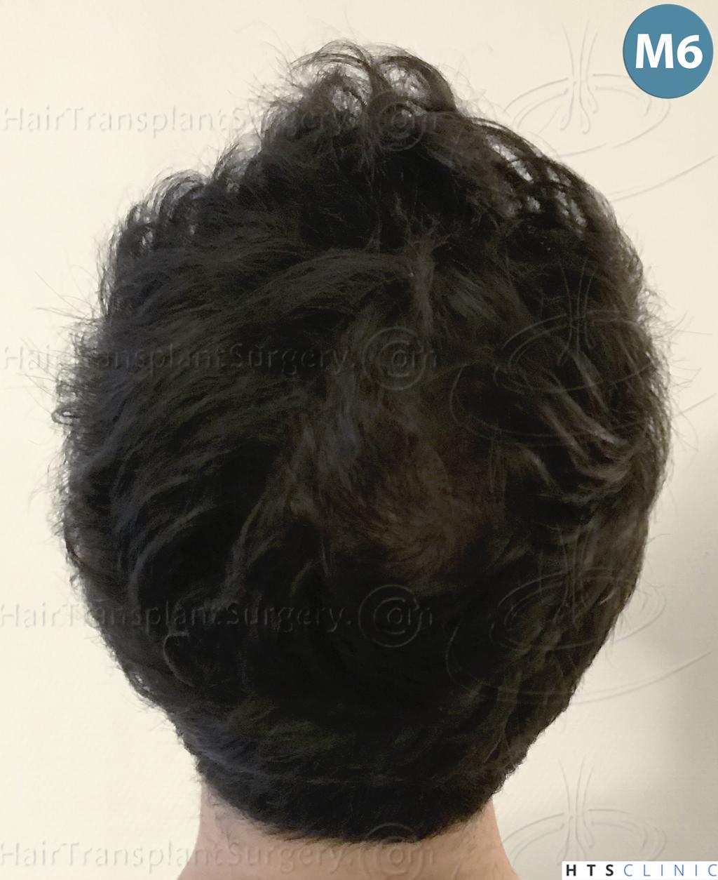 Dr.Devroye-HTS-Clinic-3545-FUE-29.jpg