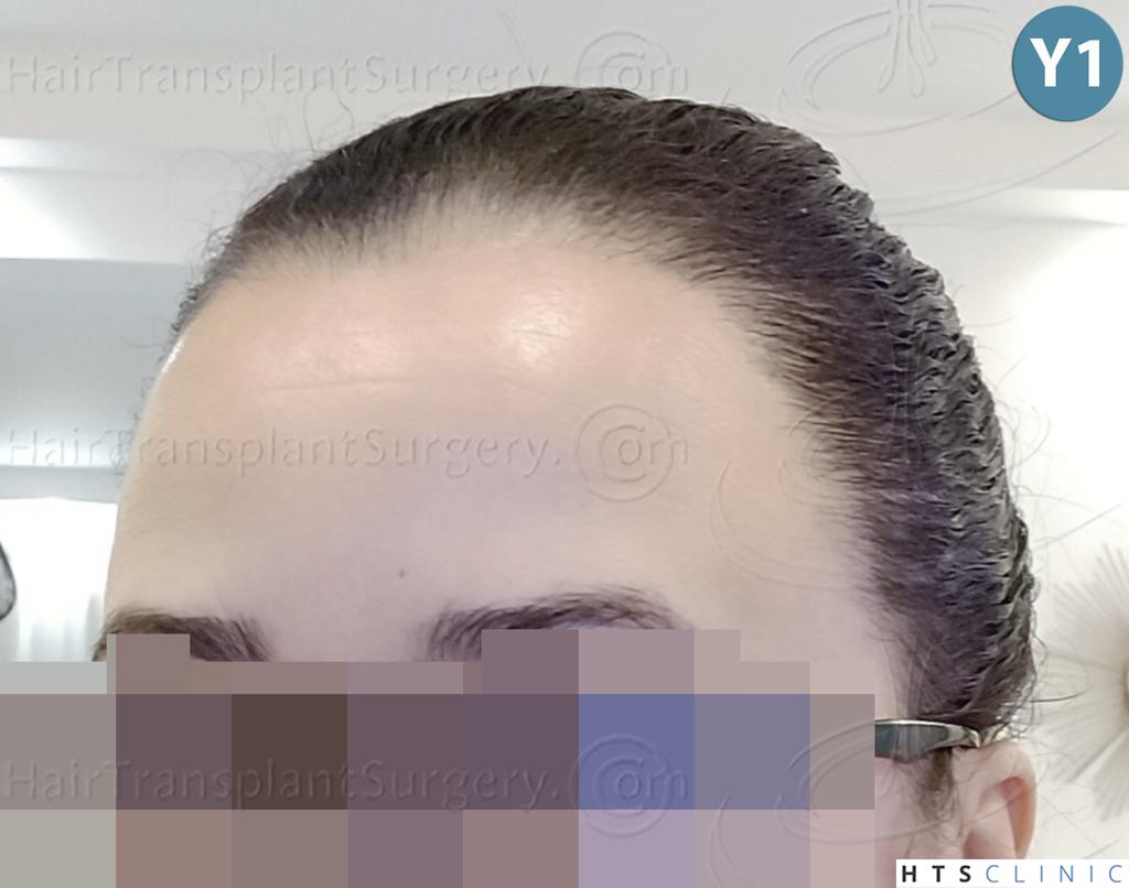 Dr.Devroye-HTS-Clinic-2136-FUT-Femme-6.jpg