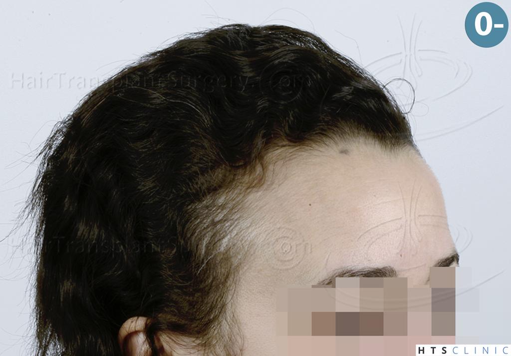 Dr.Devroye-HTS-Clinic-2136-FUT-Femme-2.jpg