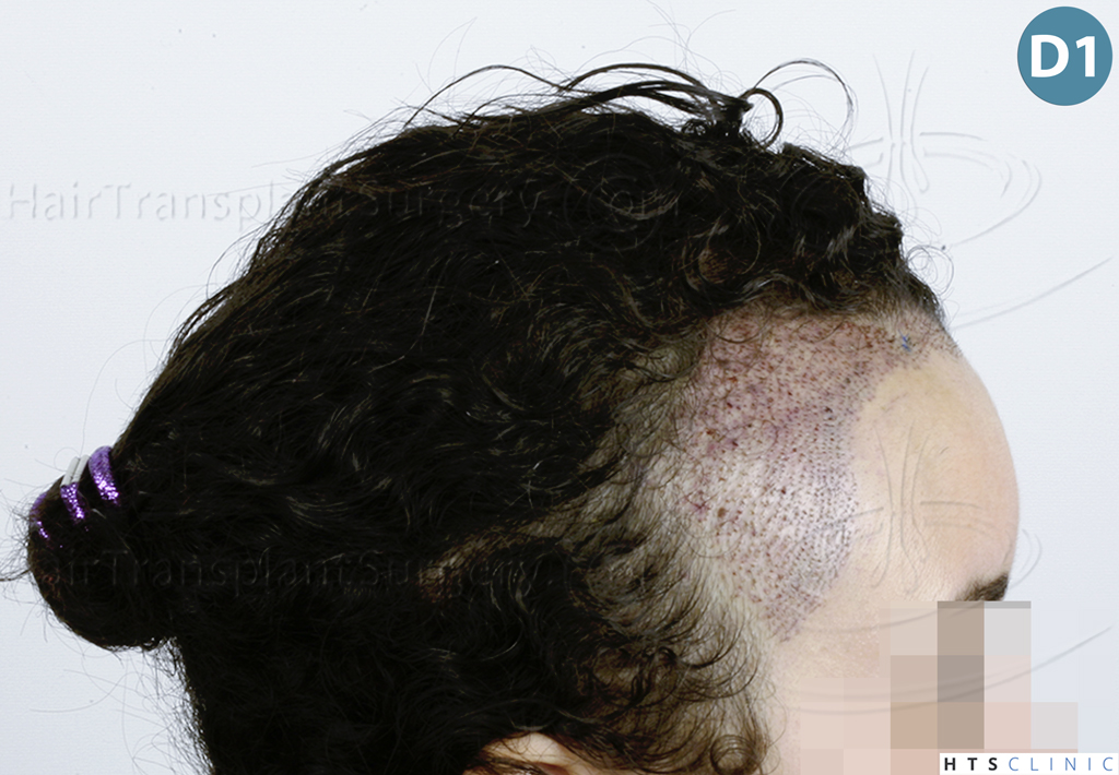 Dr.Devroye-HTS-Clinic-2136-FUT-Femme-4.jpg