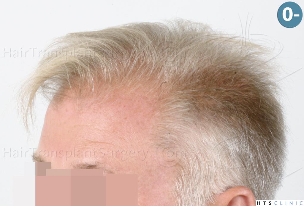 Dr.Devroye-HTS-Clinic-3428-FUT-3.jpg
