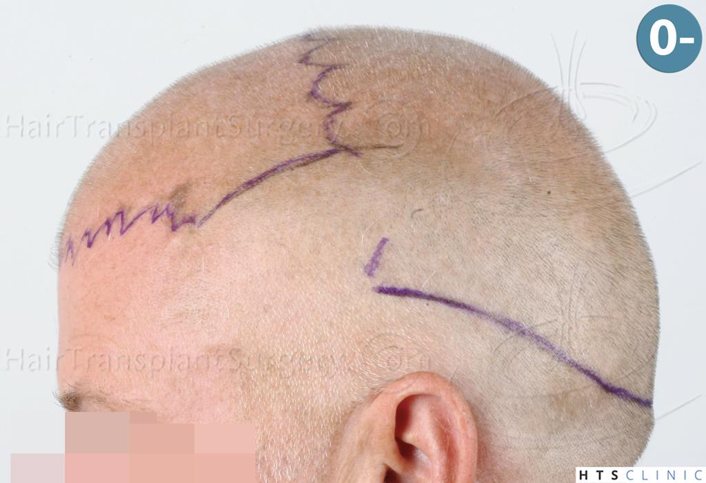 Dr.Devroye-HTS-Clinic-3428-FUT-7.jpg