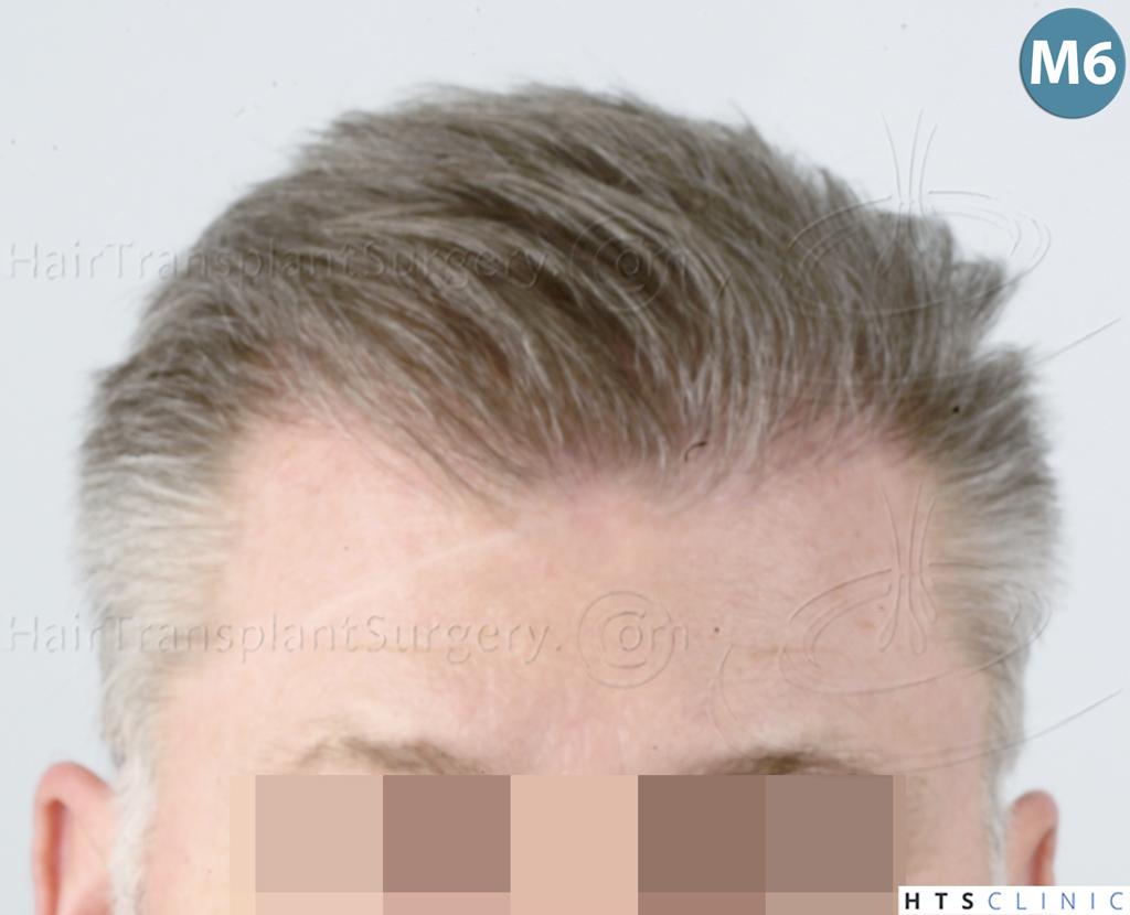 Dr.Devroye-HTS-Clinic-3428-FUT-12.jpg