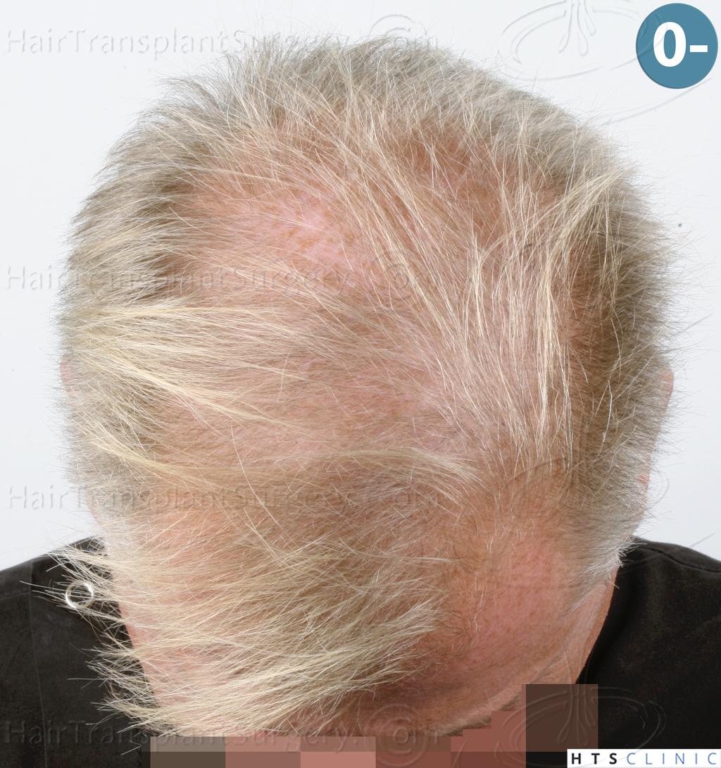 Dr.Devroye-HTS-Clinic-3428-FUT-2.jpg