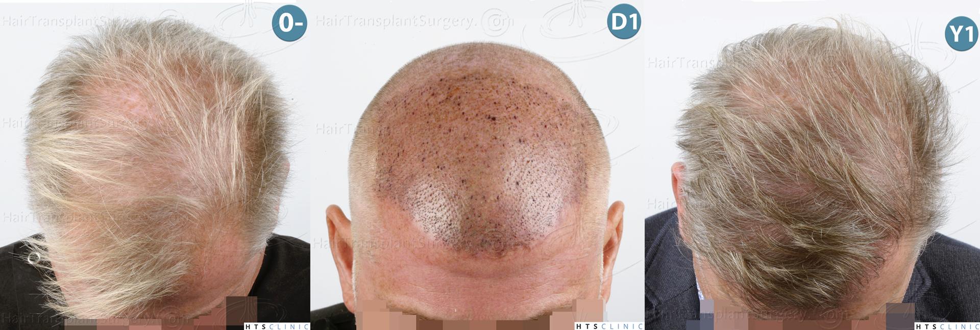 Dr.Devroye-HTS-Clinic-3428-FUT-Montage-2.jpg