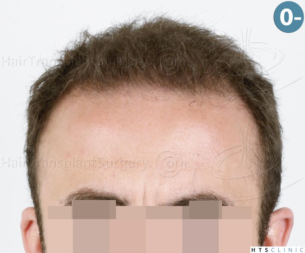 Dr.Devroye-HTS-Clinic-6326-FUE-_4261_2065_-1.jpg