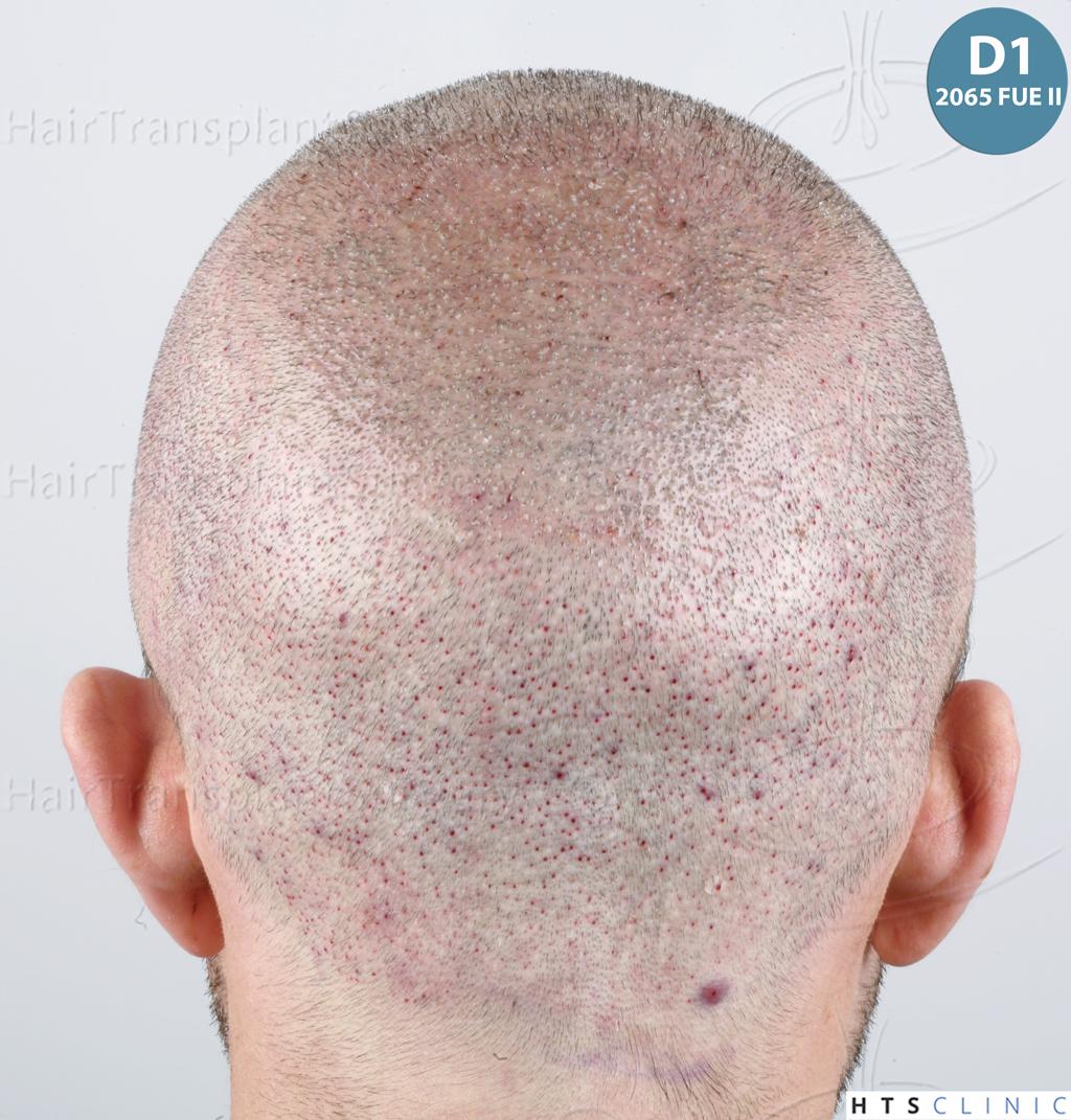 Dr.Devroye-HTS-Clinic-6326-FUE-_4261_2065_-31.jpg