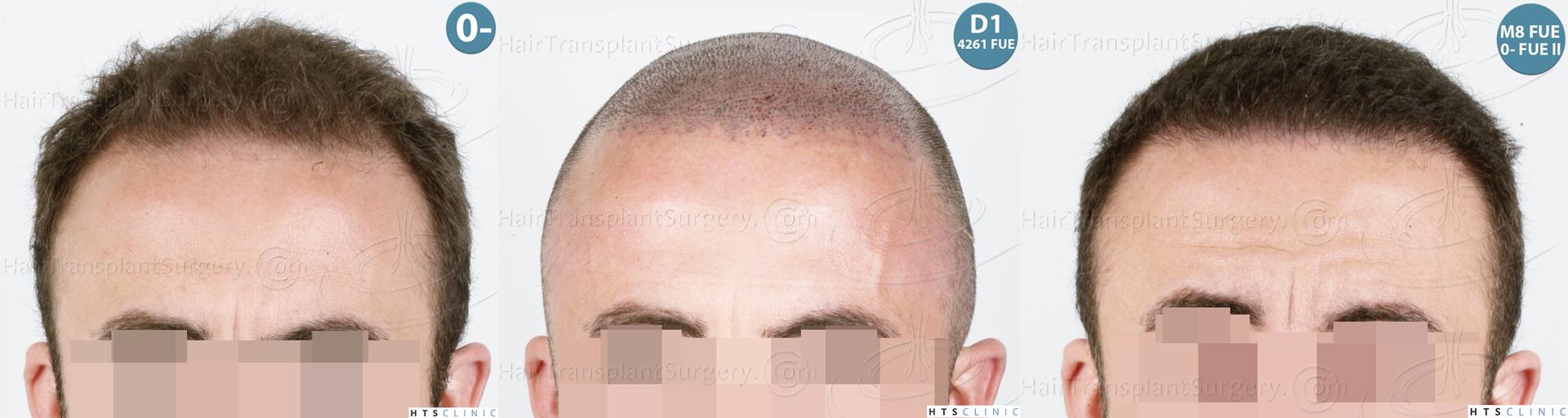 Dr.Devroye-HTS-Clinic-6326-FUE-_4261_2065_-Montage-1.jpg