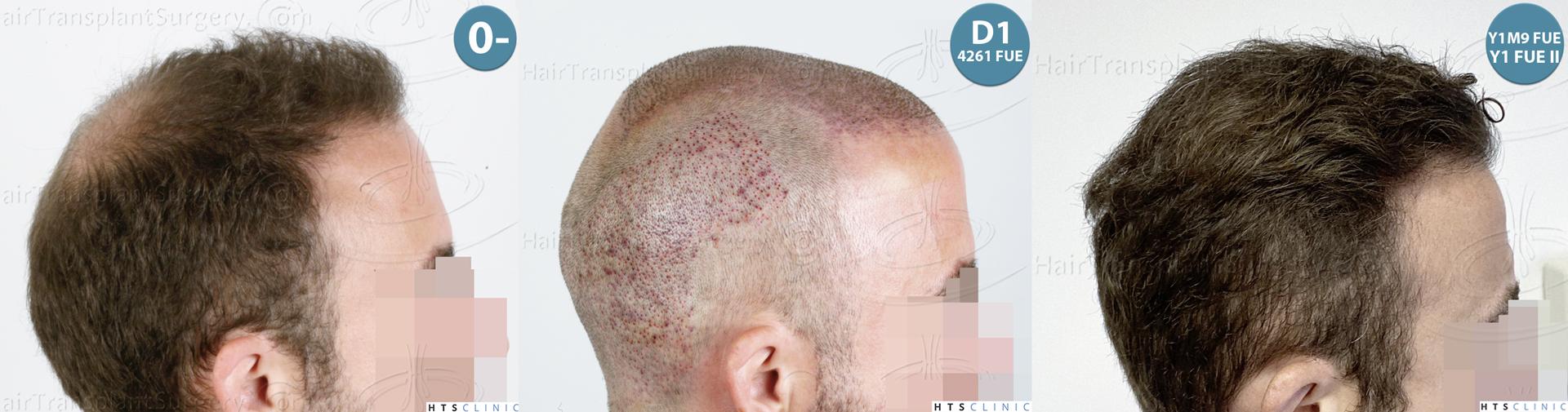 Dr.Devroye-HTS-Clinic-6326-FUE-_4261_2065_-Montage-4.jpg