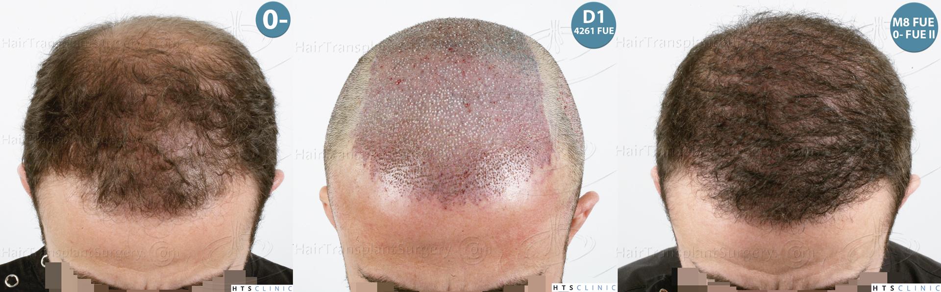 Dr.Devroye-HTS-Clinic-6326-FUE-_4261_2065_-Montage-2.jpg