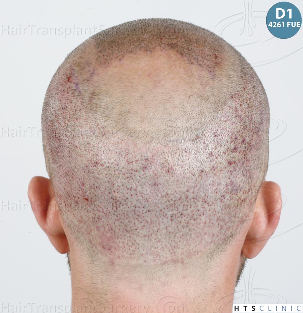 Dr.Devroye-HTS-Clinic-6326-FUE-_4261_2065_-12.jpg
